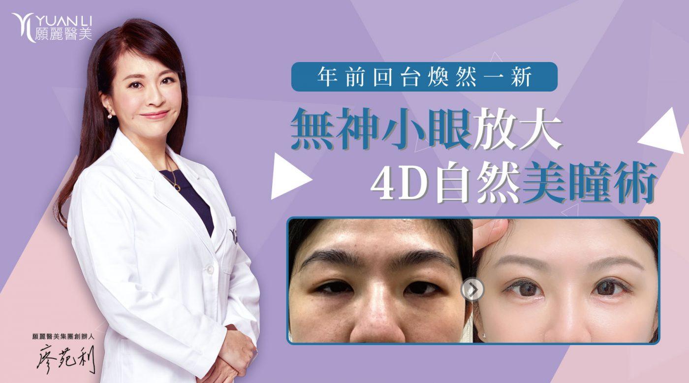 醫美推薦 割雙眼皮